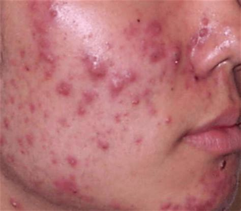 Pimples on Cheeks, Small, Painful, Causes, that won't go