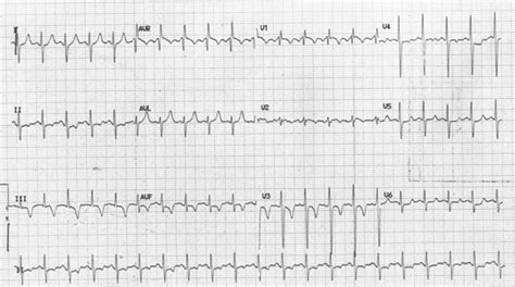 ECG showing sinus tachycardia with right axis deviation