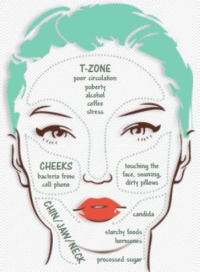 What's Causing Persistent Acne On Your Cheeks? | Wake