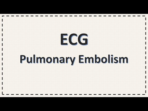 Pulmonary embolism,overview