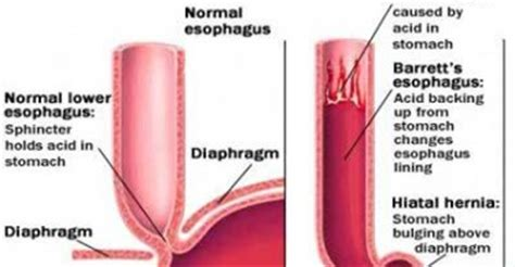 Chronic Exertional Compartment Syndrome Causes, Symptoms