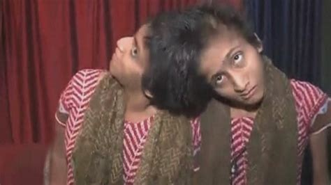 India's famous conjoined twins, Saba and Farah, win court